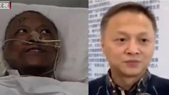 Çinli doktorun teni normale döndü