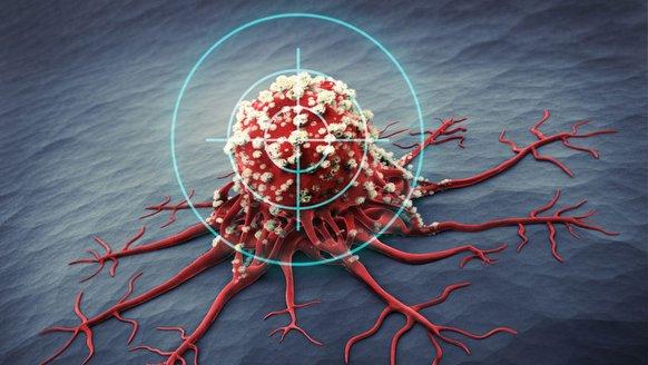 Yeni kanser tedavisi geliştirildi
